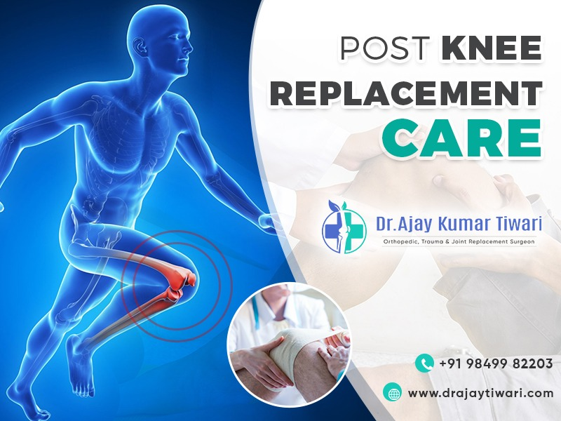 post knee replacement care